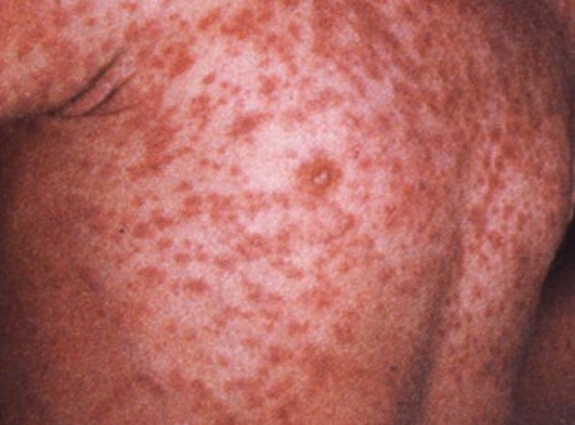 Forehead Rash - Healthgrades - Find a Doctor