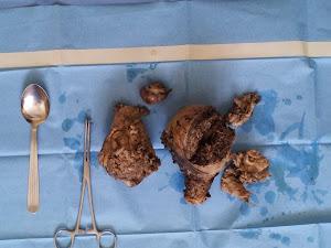 Sampel Rahim dan fibroid-fibroid