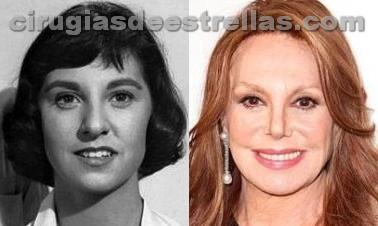 Marlo Thomas antes y después