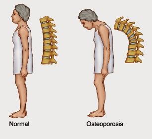 Mencegah Terjadinya Penyakit Osteoporosis
