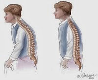Tips on Healthy Bones - Types of Osteoporosis Medications