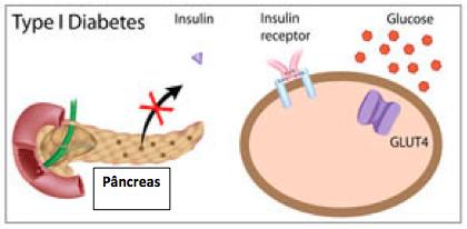No diabetes tipo 1, o problema está na produção de insulina