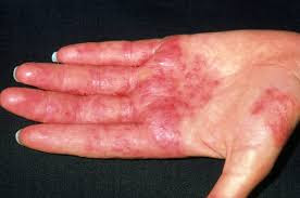 Nursing Diagnosis and Interventions for Dermatitis