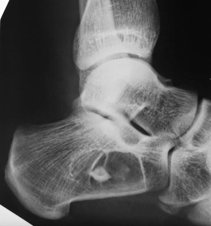 Опухоли костей доброкачественные