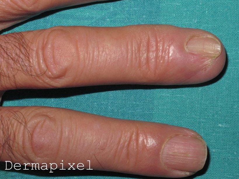 Klotrimazol la solución no ayuda del hongo de las uñas