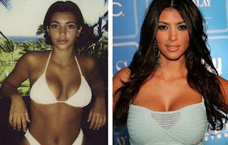 Kim Kardashian with Bigger Bust Before and After