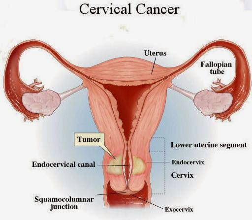 mother nature's cures ( being healthy-naturally): cervical cancer, Skeleton