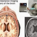 MRI Scan Tips - 6 Steps to Read Brain MRI Results