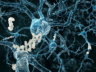 Umbilical Cord Blood Cells Improve Cognition In Alzheimer's