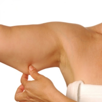 How to combat flaccidity in arms and legs
