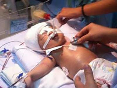 Bayi 11 hari parah ditikam di kepala