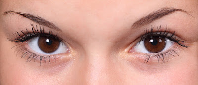 eye dryness in Sjogren's Syndrome