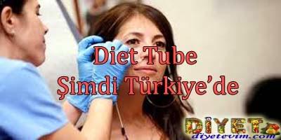 diet tube