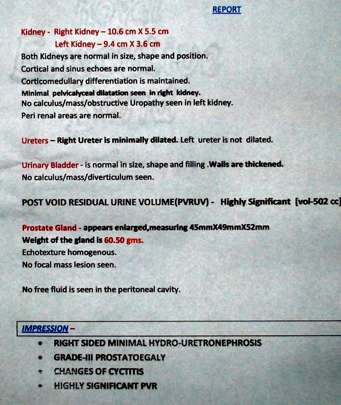 Avodart Abdominal Pain Upper Side Effects - Patientsville