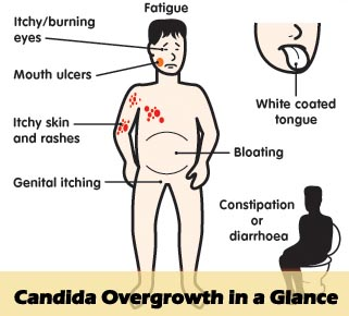 What Are The Candida Die Off Symptoms Back Pain Relief