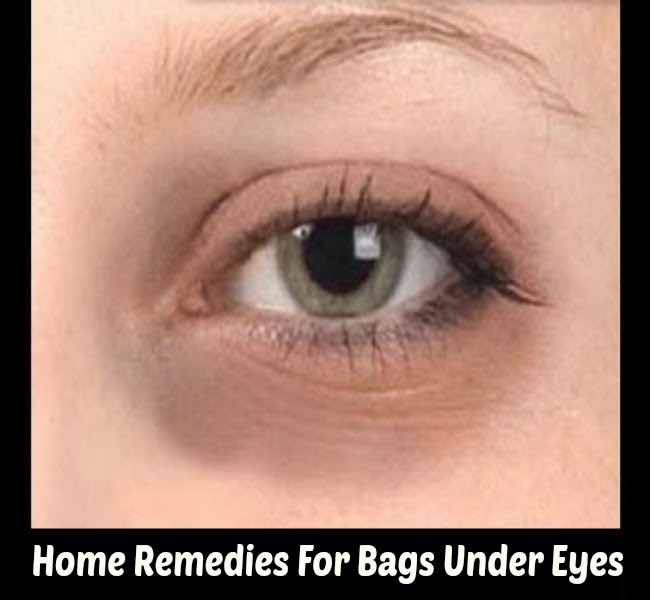 Home Remedies F... Home Treatment For Baggy Eyes
