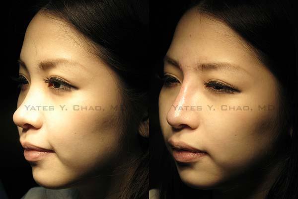 Radiesse晶亮瓷鼻部塑型
