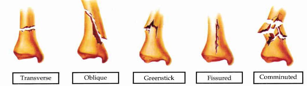 types-bone-fractures