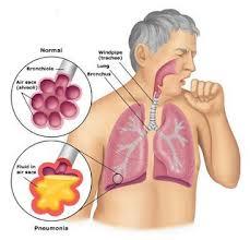 obat infeksi paru-paru herbal yang ampuh