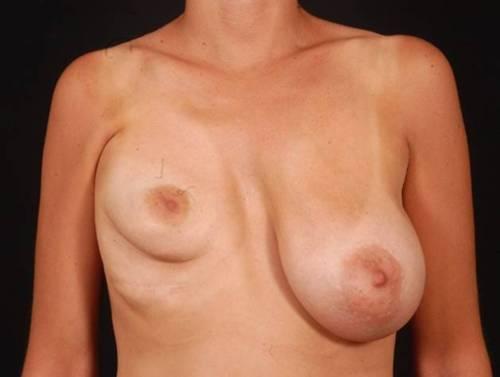 Implant bad breast
