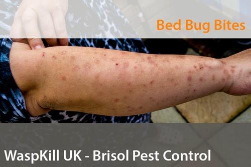 Bristol bed bug control bites