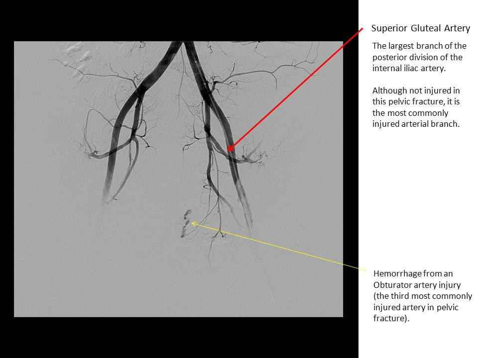 The Pump and the Tubes: Internal Iliac artery: Posterior Division ...