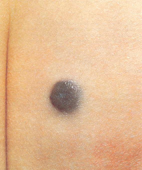Acral-lentiginous melanoma | Primary Care Dermatology ...