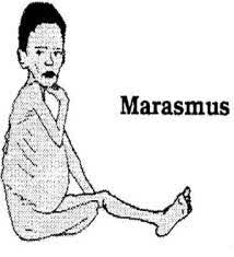 Nursing Diagnosis and Nursing Intervention for Marasmus