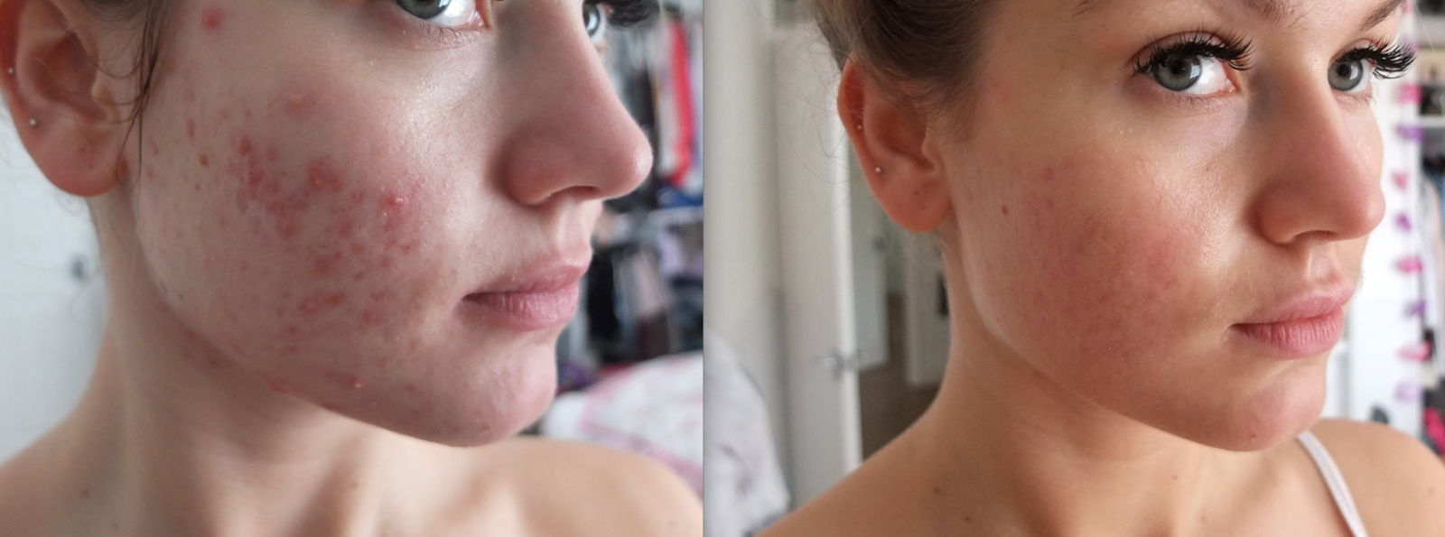 My struggle with Acne + going on Roaccutane - Where's Mollie