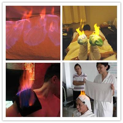 Huo Liao: Rawatan Kecantikkan Dengan Cara Membakar Wajah