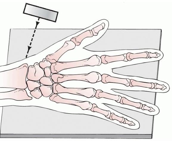 Physis distal end : M --> เริ่มเห็น 6เดือน -1.bp.blogspot.com