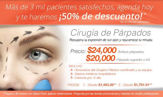 Paquetes de Blefaroplastia cirugia plastica estetica de parpados de ojos en Salutaris Guadalajara. Precio Costo