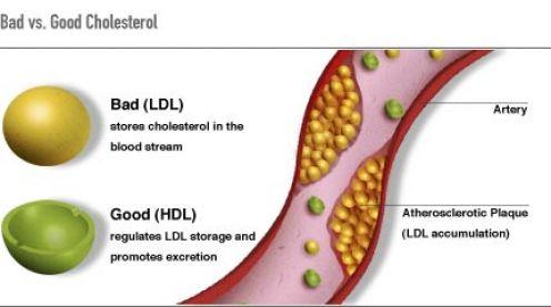 ldl og hdl kolesterol