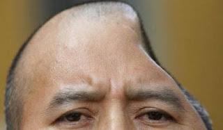 Perdió parte de su cabeza en una pelea