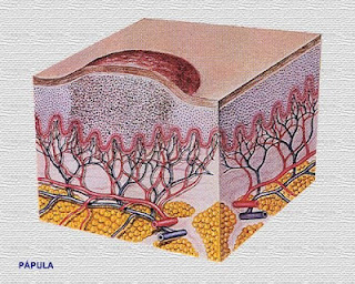 Patología cutánea