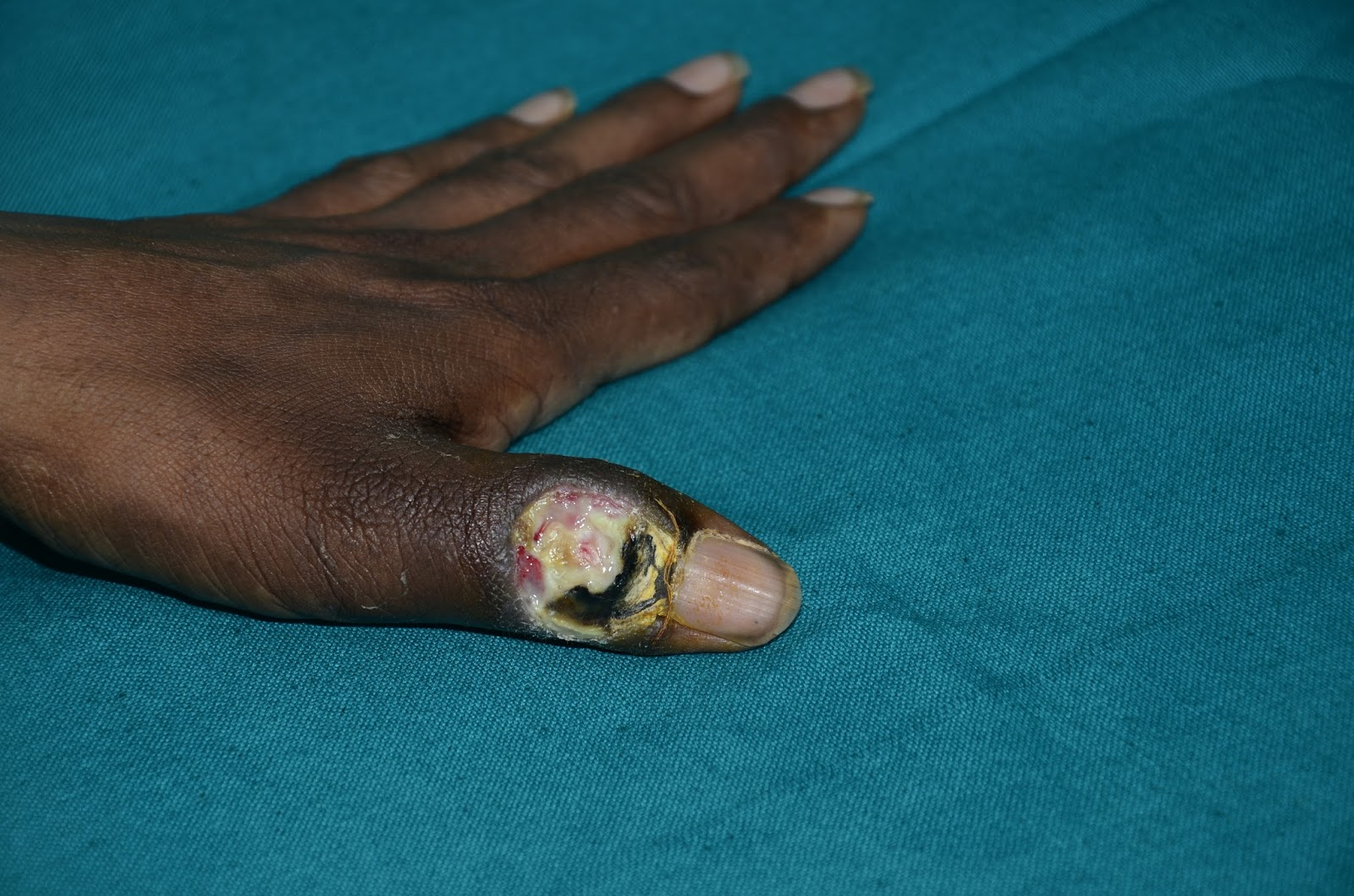 POST INFECTIVE SOFT TISSUE LOSS - EXPOSED IP JOINT THUMB - K-WIRE ...