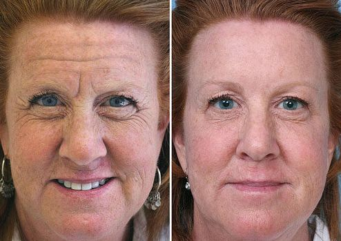Yes There Are Face Reflexology Workout Techniques That Can Instill New Life To Your Lessen Creases And Tone Saggy Tissue On The Throat