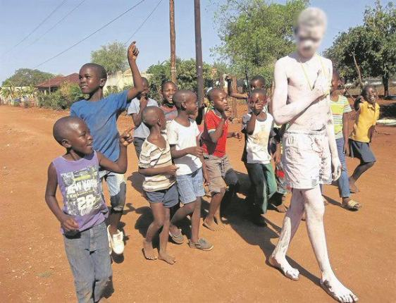 Young man painted white for stealing and made to walk 250 metres down the street