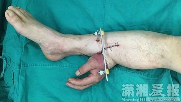 En la China implantaron una mano en una pierna para salvarla