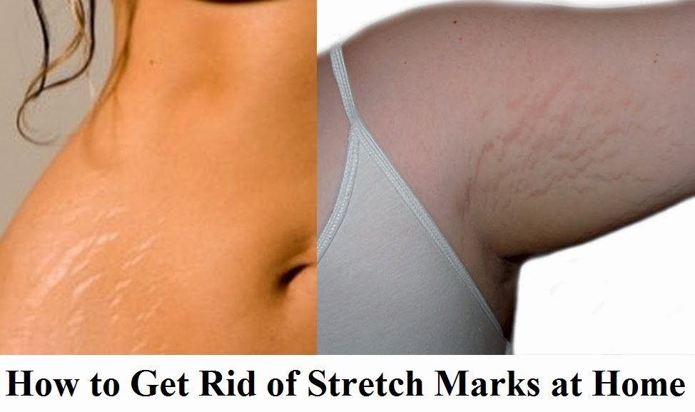 Home Remedies for Stretch Marks -  Are there any home remedies for stretch marks? It is a question that many women may ask themselves before, during, or after pregnancy.  Read on to find out more.