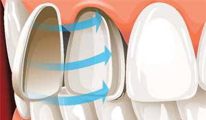 carillas dientes adelante estetica