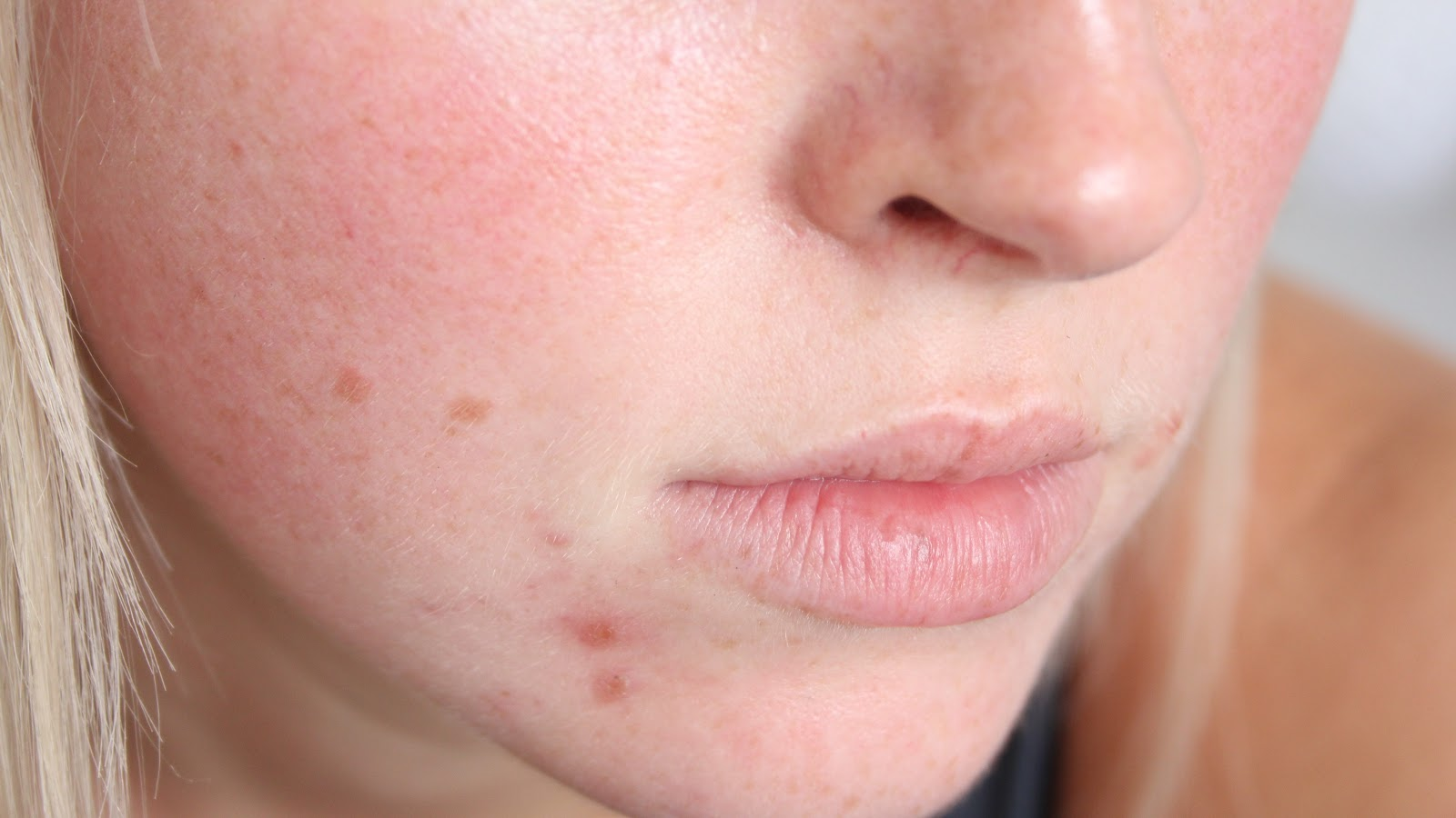 Spots And Dry Skin On Face