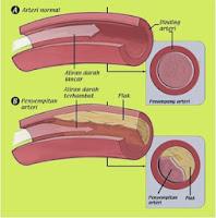 cara menurunkan kolesterol, gejala kolesterol, gejala kolesterol tinggi, kolesterol, kolesterol adalah, kolesterol tinggi, makanan penurun kolesterol, menurunkan kolesterol, penyakit kolesterol, penyebab kolesterol