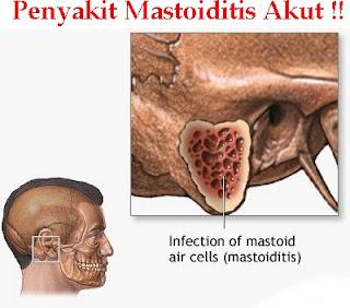 Obat Tradisional Mastoiditis Akut