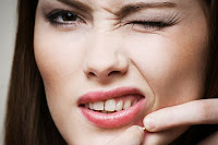 Acne scars using enzymes to remove acne scar goodbye acne acne scars types of acne lesions ccuart Gallery