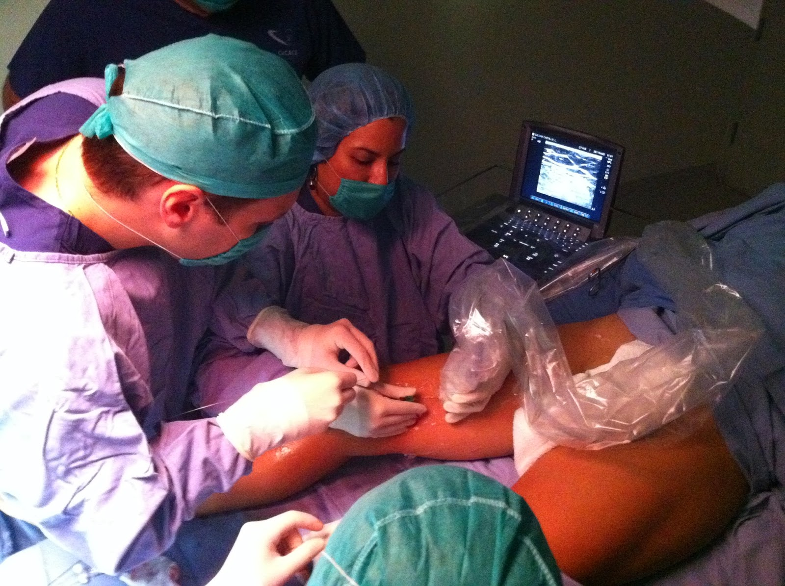 O ultra-som doppler pode ser utilizado para quiar a cirurgia a laser para varizes