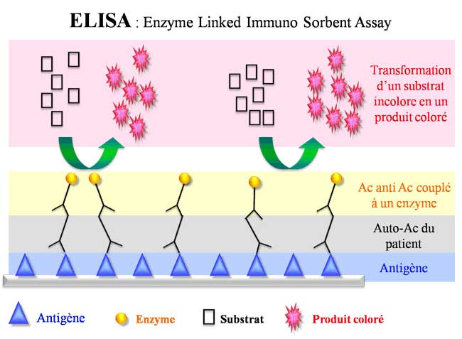 elisa lab report The elisa test are merely hepatitis b serologies your elisa report will be a maximum of 3 pages reports will be e-mailed unless an alternative method is selected.