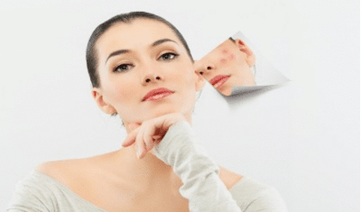 Mike Walden Acne No More – How to eliminate the issue of acne