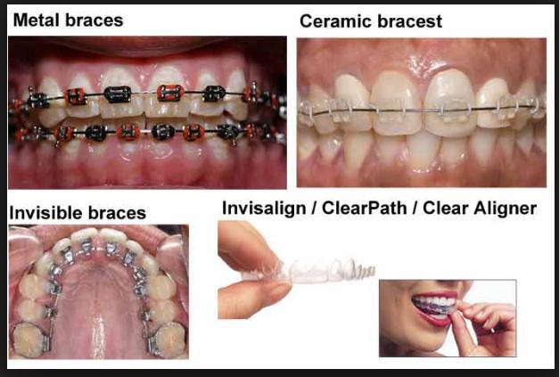 Mesa AZ Orthodontist Dental Braces Treatments