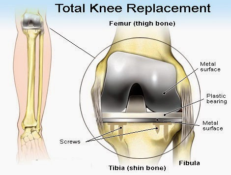How Long Does A Knee Replacement Last